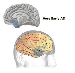 Early Stage or First stage- Preclinical Alzheimer's disease