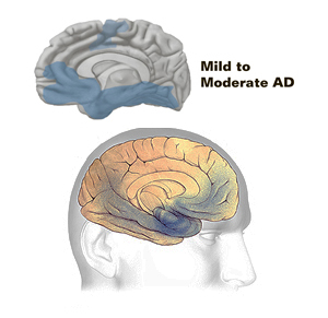 Mid Stage or Second Stage- Mild cognitive impairment (MCI)